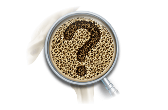 Is it safe to use Synofit if I suffer from Gallstones?